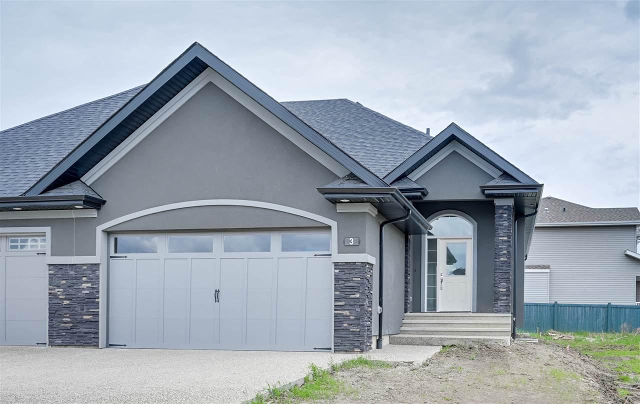 Main Photo: 3 20425 93 Avenue in Edmonton: Zone 58 House Half Duplex for sale : MLS®# E4202783