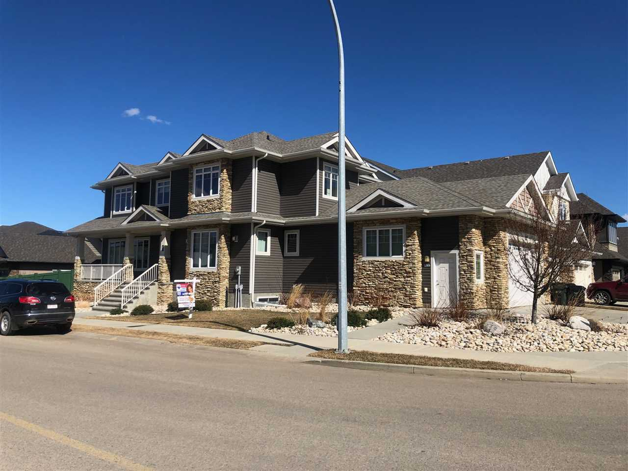 Main Photo: 155 CAMPBELL Drive: Sherwood Park House for sale : MLS®# E4148086
