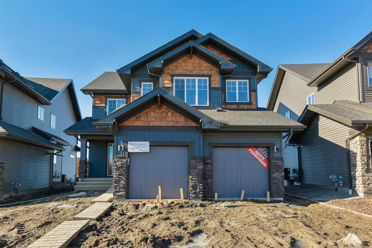 Main Photo: 1420 GRAYDON HILL Way in Edmonton: Zone 56 House for sale : MLS®# E4151550