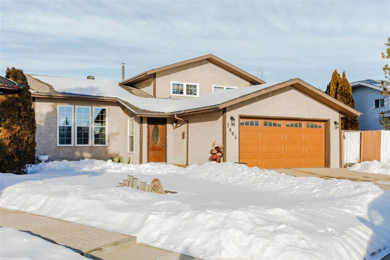 Main Photo: 7604 189 St NW in Edmonton: Zone 20 House for sale : MLS®# E4140355