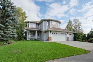 Photo 3: 4515 17 ST in Edmonton: Zone 53 House for sale : MLS®# E4173472