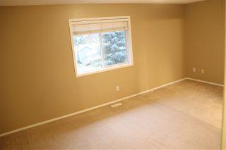 Photo 31: 17051 113 Street in Edmonton: Zone 27 House Half Duplex for sale : MLS®# E4189910