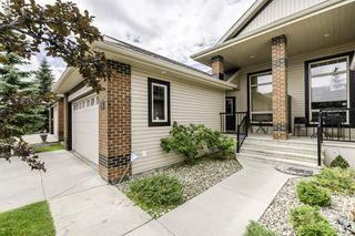 Photo 3: 26 841 156 Street in Edmonton: Zone 14 House Half Duplex for sale : MLS®# E4207892