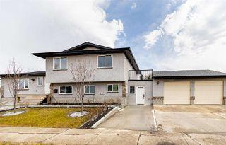 Photo 3: 10303 155 Avenue in Edmonton: Zone 27 House for sale : MLS®# E4195486
