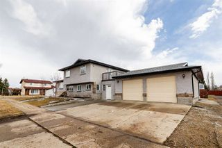 Photo 4: 10303 155 Avenue in Edmonton: Zone 27 House for sale : MLS®# E4195486