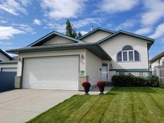 Main Photo: 720 KIRKNESS Road in Edmonton: Zone 35 House for sale : MLS®# E4174972