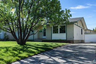 Photo 1: 880 Birch Avenue: Sherwood Park House for sale : MLS®# E4199660