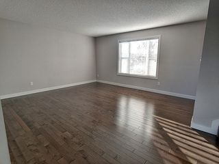 Photo 7: 12 301 Palisades Way: Sherwood Park Townhouse for sale : MLS®# E4187062