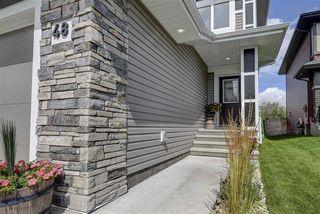 Photo 3: 48 Kensington Close: Spruce Grove House for sale : MLS®# E4178160