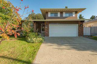 Main Photo: 29 Woodlake Road: Sherwood Park House for sale : MLS®# E4176022