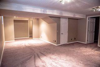 Photo 29: 112 VILLAGE Downs: Sherwood Park House for sale : MLS®# E4188449