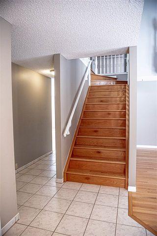 Photo 11: 112 VILLAGE Downs: Sherwood Park House for sale : MLS®# E4188449