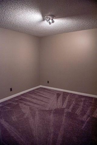 Photo 34: 112 VILLAGE Downs: Sherwood Park House for sale : MLS®# E4188449