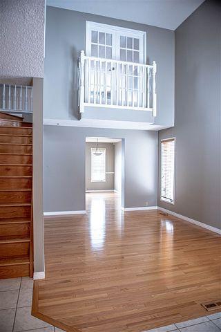 Photo 4: 112 VILLAGE Downs: Sherwood Park House for sale : MLS®# E4188449