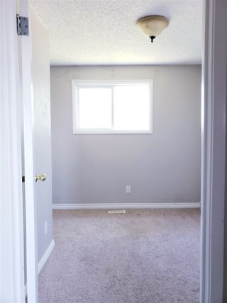 Photo 8: 300 HERMITAGE Road in Edmonton: Zone 35 Townhouse for sale : MLS®# E4167382