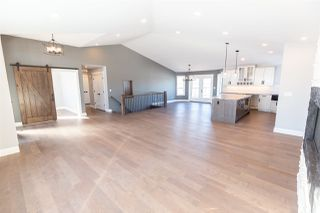 Photo 4: 53468 RGE RD 220: Rural Strathcona County House for sale : MLS®# E4181378