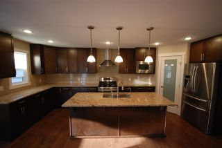 Photo 7: 7599 ELLESMERE Way: Sherwood Park House for sale : MLS®# E4178359