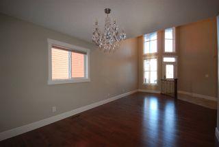 Photo 11: 7599 ELLESMERE Way: Sherwood Park House for sale : MLS®# E4178359