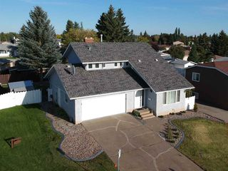 Main Photo: 17315 102 Street in Edmonton: Zone 27 House for sale : MLS®# E4173660