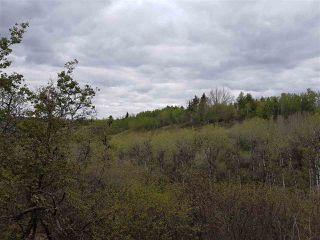 Photo 44: 43 CARLETON Drive: Rural Sturgeon County House for sale : MLS®# E4193328