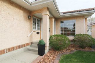 Photo 4: 117 NOTTINGHAM Boulevard W: Sherwood Park House Half Duplex for sale : MLS®# E4197998