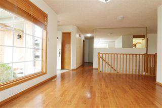 Photo 19: 117 NOTTINGHAM Boulevard W: Sherwood Park House Half Duplex for sale : MLS®# E4197998