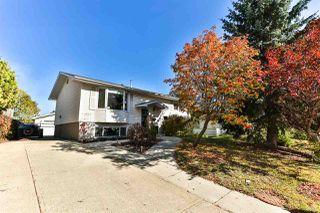 Main Photo: 1025 Parker Drive: Sherwood Park House for sale : MLS®# E4175761