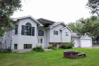 Main Photo: 18860 121 Avenue in Edmonton: Zone 40 House for sale : MLS®# E4124564