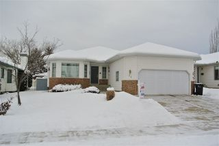 Main Photo: 24 NORFOLK Bay: Sherwood Park House for sale : MLS®# E4130513