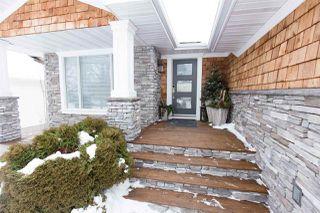 Photo 3: 102 Ridgemont Crescent: Sherwood Park House for sale : MLS®# E4186066