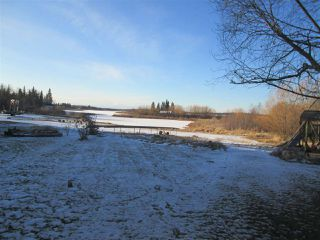 Photo 2: 157 51268 RGE RD 204: Rural Strathcona County House for sale : MLS®# E4182061