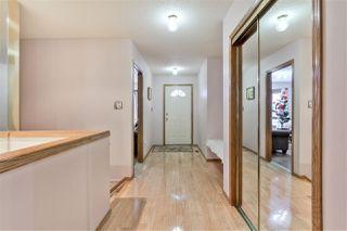 Photo 6: 20 2A FIELDSTONE Drive: Spruce Grove House Half Duplex for sale : MLS®# E4182498