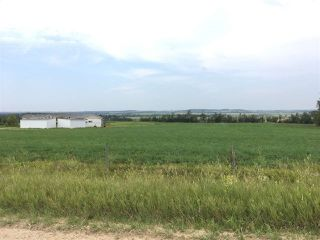 Photo 25: 58424B RR 274: Rural Westlock County House for sale : MLS®# E4153312
