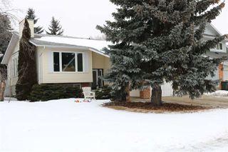 Main Photo: 20 GREENRIDGE Drive: Sherwood Park House for sale : MLS®# E4140356