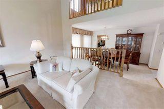 Photo 7: 15424 106 Street in Edmonton: Zone 27 House for sale : MLS®# E4151440