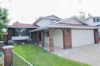 Photo 2: 17243 104 Street in Edmonton: Zone 27 House for sale : MLS®# E4161322