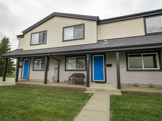 Main Photo: 9 18010 98 Avenue in Edmonton: Zone 20 Townhouse for sale : MLS®# E4131112
