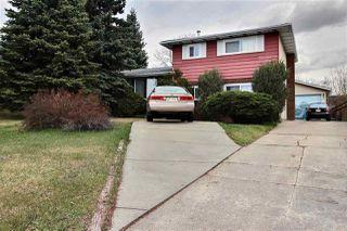 Main Photo: : Sherwood Park House for sale : MLS®# E4156250