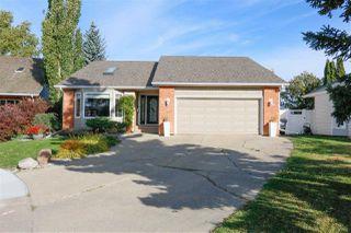 Photo 2: 682 VILLAGE Place: Sherwood Park House for sale : MLS®# E4215414