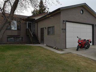 Main Photo: 15232 73 Street in Edmonton: Zone 02 House for sale : MLS®# E4145643