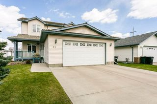 Photo 2: 91 CHARLTON Crescent: Sherwood Park House for sale : MLS®# E4197152