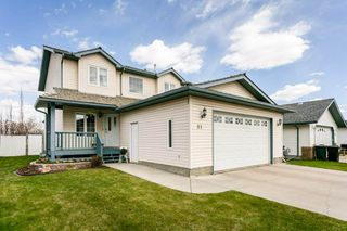 Photo 1: 91 CHARLTON Crescent: Sherwood Park House for sale : MLS®# E4197152
