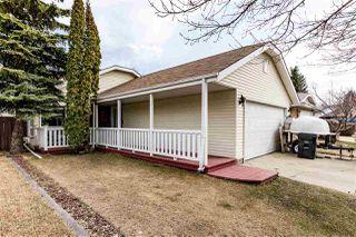 Main Photo: 35 VENTNOR Place: Sherwood Park House for sale : MLS®# E4151413