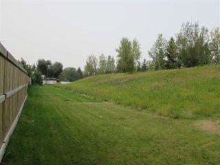 Photo 7: 157 Woodstock in Edmonton: Zone 20 Townhouse for sale : MLS®# E4139515