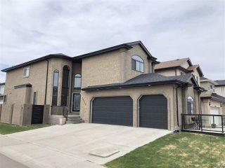 Photo 3: 16240 134 Street in Edmonton: Zone 27 House for sale : MLS®# E4098714