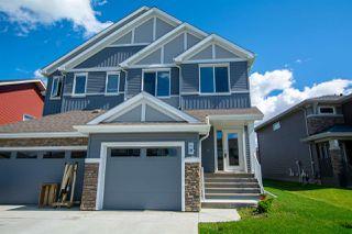 Photo 2: 9 JAMES Crescent: St. Albert House Half Duplex for sale : MLS®# E4206307