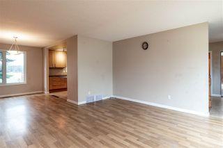 Photo 5: 1096 MOYER Drive: Sherwood Park House for sale : MLS®# E4178064