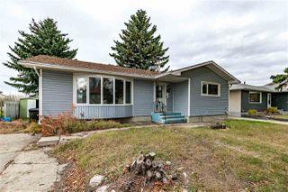 Photo 1: 1096 MOYER Drive: Sherwood Park House for sale : MLS®# E4178064