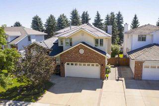Photo 2: 13 NOTTINGHAM Boulevard: Sherwood Park House for sale : MLS®# E4209622