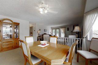 Photo 8: 28  65 Cranford Drive: Sherwood Park House Half Duplex for sale : MLS®# E4201184